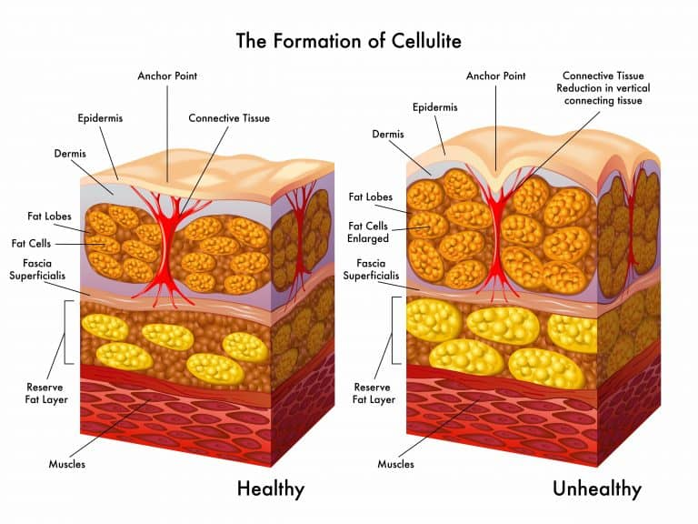 Getting Rid Of Cellulite:Do Massages Really Work?