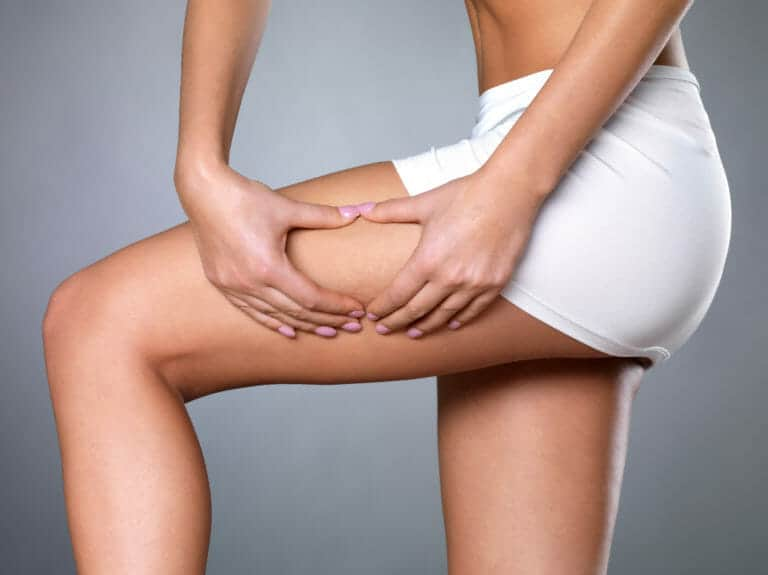 8 Worst Foods That Cause Cellulite and What You Can Do About It