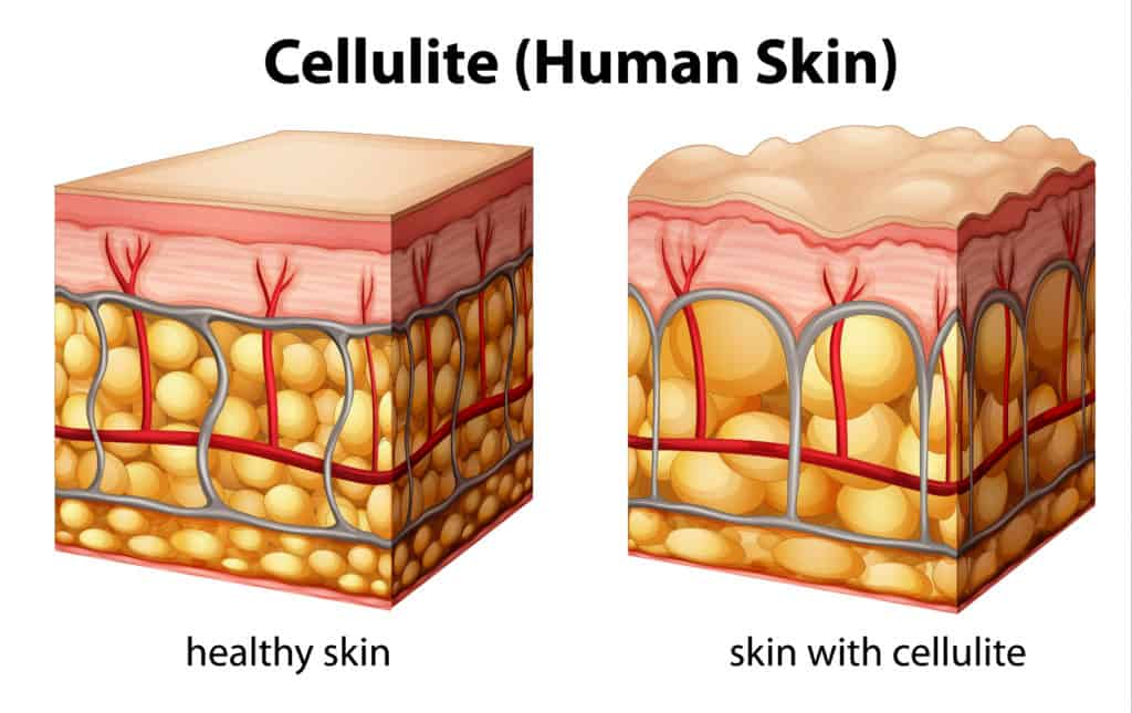 what are the foods that causes cellulite